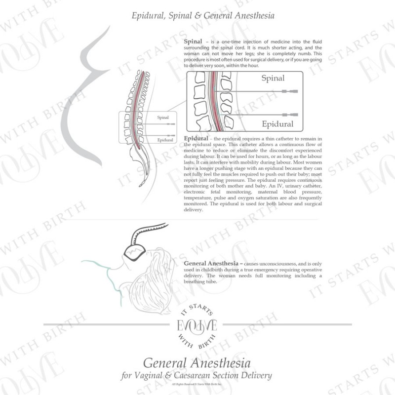 #5 Epidural, Spinal and General Anesthesia